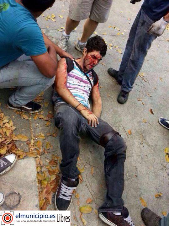 herido_por_los_chavistas