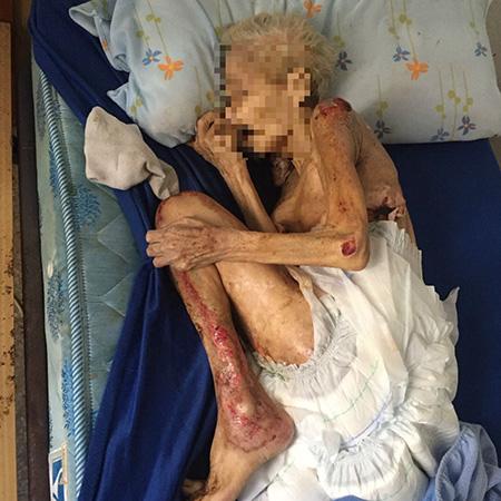 anciana-muerta-de-hambre