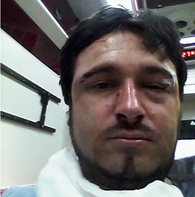 Jorge Garrido tras sufrir la brutal agresión