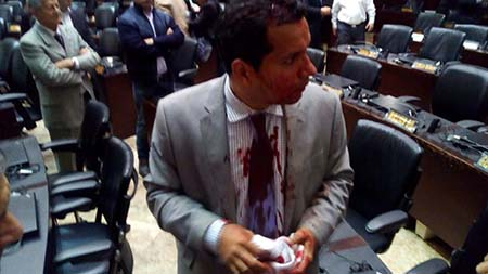Diputado de venezuela agredido Congreso
