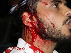 Diputado agredido Venezuela Congreso