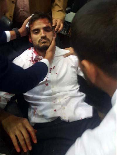 Diputado agredido Venezuela