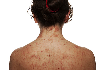 Dermatitis Atópica en adultos. Mujer con dermatitis atópica.