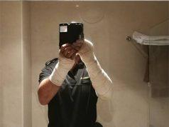 Guardia Civil atacado por los inmigrantes en Ceuta con cal viva