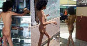 Mujer venezolana camina desnutrida desnuda por la calle